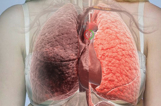 タバコによる肺の違い