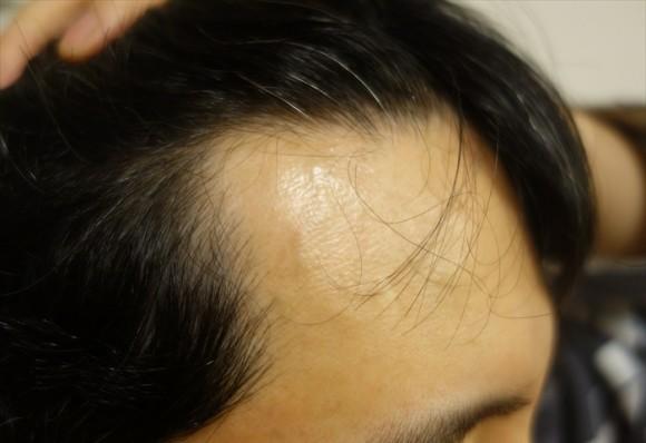 髪の生え際