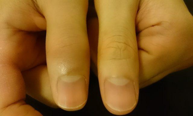 手の指を骨折正面