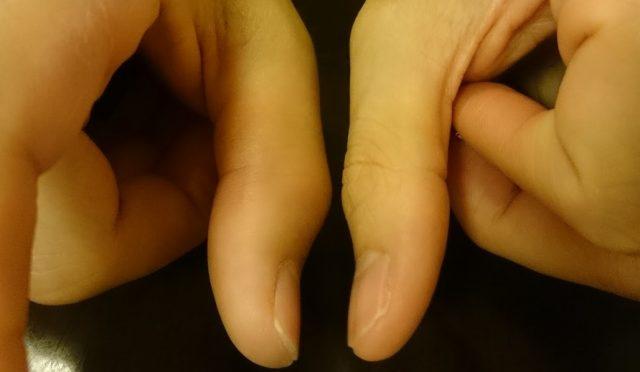 手の指を骨折真横